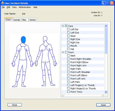 Face Injury Diagram